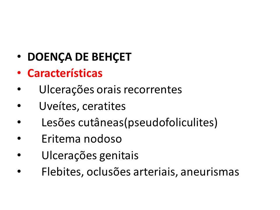 DOENÇA DE BEHÇET Características Ulcerações orais recorrentes Uveítes, ceratites Lesões cutâneas(pseudofoliculites) Eritema nodoso Ulcerações genitais