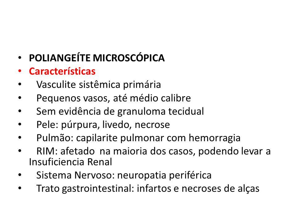 POLIANGEÍTE MICROSCÓPICA Características Vasculite sistêmica primária Pequenos vasos, até médio calibre Sem evidência de granuloma tecidual Pele: púrp
