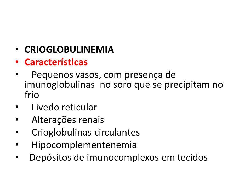 CRIOGLOBULINEMIA Características Pequenos vasos, com presença de imunoglobulinas no soro que se precipitam no frio Livedo reticular Alterações renais