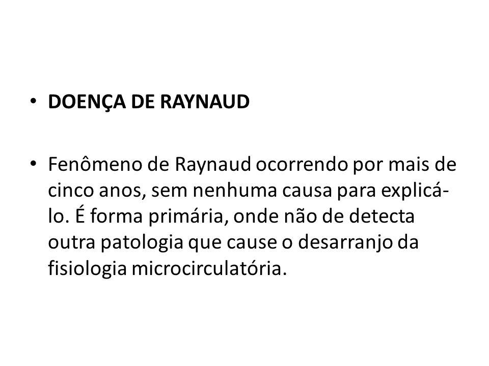 DOENÇA DE RAYNAUD Fenômeno de Raynaud ocorrendo por mais de cinco anos, sem nenhuma causa para explicá- lo. É forma primária, onde não de detecta outr