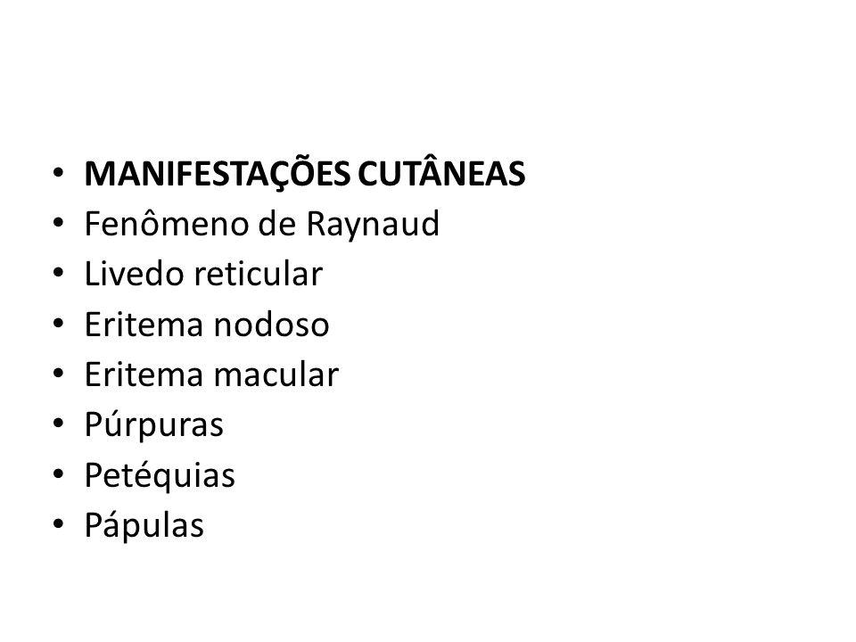 MANIFESTAÇÕES CUTÂNEAS Fenômeno de Raynaud Livedo reticular Eritema nodoso Eritema macular Púrpuras Petéquias Pápulas