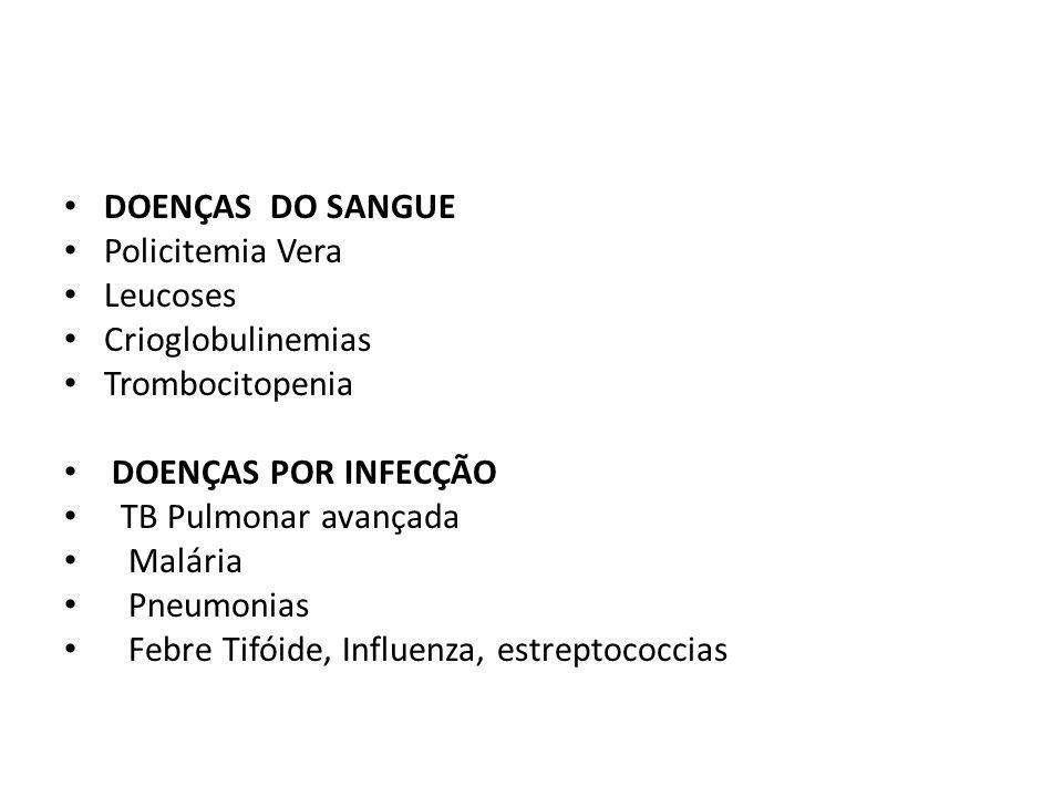 DOENÇAS DO SANGUE Policitemia Vera Leucoses Crioglobulinemias Trombocitopenia DOENÇAS POR INFECÇÃO TB Pulmonar avançada Malária Pneumonias Febre Tifói