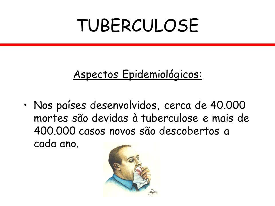 Aspectos Epidemiológicos: Nos países desenvolvidos, cerca de 40.000 mortes são devidas à tuberculose e mais de 400.000 casos novos são descobertos a c