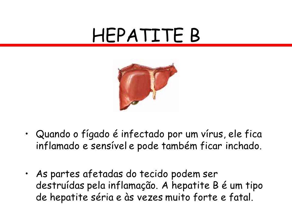 HEPATITE B Quando o fígado é infectado por um vírus, ele fica inflamado e sensível e pode também ficar inchado. As partes afetadas do tecido podem ser
