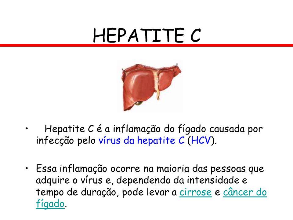 HEPATITE C Hepatite C é a inflamação do fígado causada por infecção pelo vírus da hepatite C (HCV). Essa inflamação ocorre na maioria das pessoas que