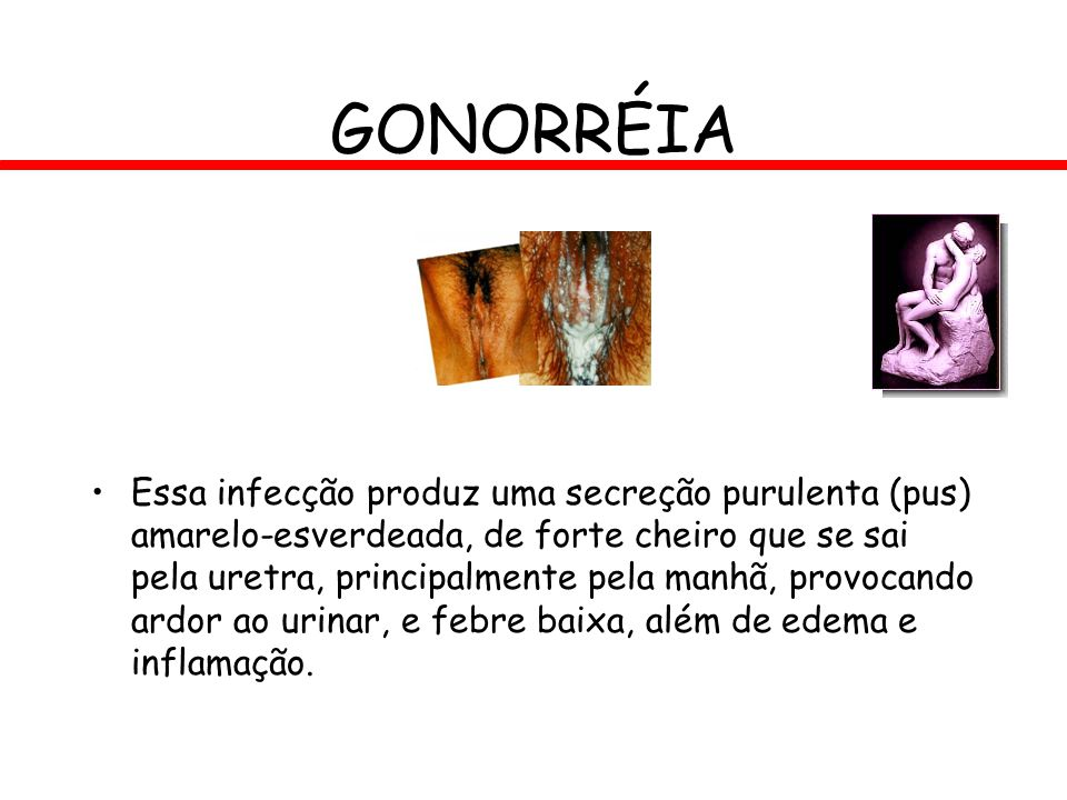 GONORRÉIA Essa infecção produz uma secreção purulenta (pus) amarelo-esverdeada, de forte cheiro que se sai pela uretra, principalmente pela manhã, pro
