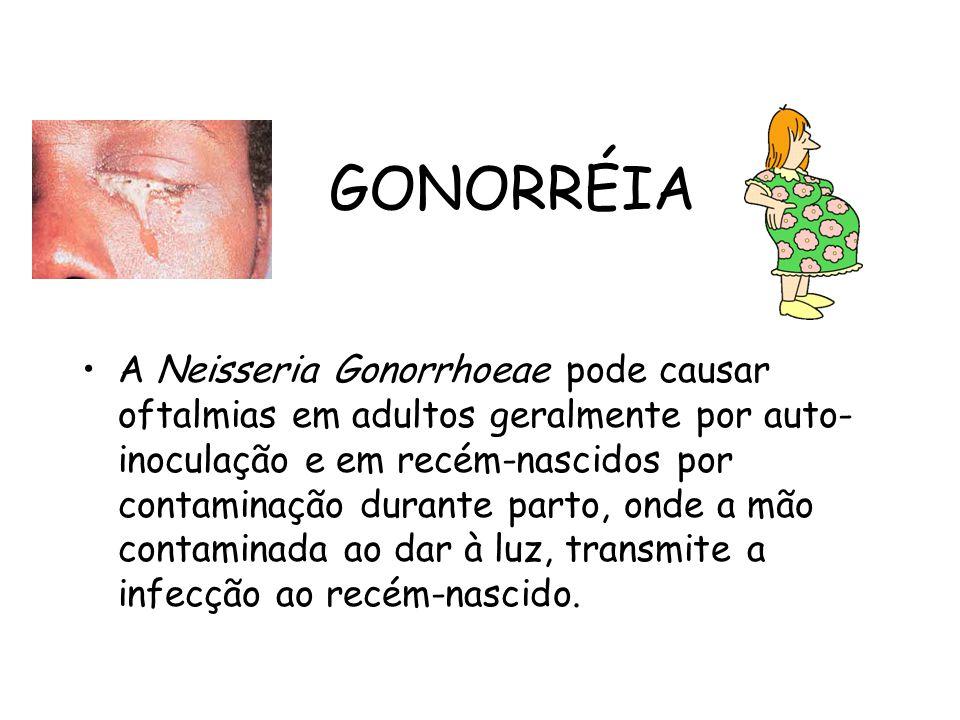 GONORRÉIA A Neisseria Gonorrhoeae pode causar oftalmias em adultos geralmente por auto- inoculação e em recém-nascidos por contaminação durante parto,