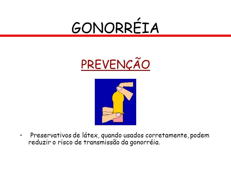 PREVENÇÃO Preservativos de látex, quando usados corretamente, podem reduzir o risco de transmissão da gonorréia. GONORRÉIA