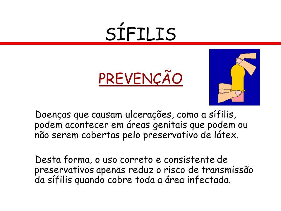 PREVENÇÃO Doenças que causam ulcerações, como a sífilis, podem acontecer em áreas genitais que podem ou não serem cobertas pelo preservativo de látex.