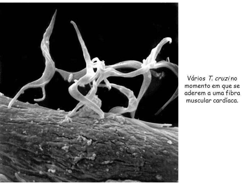 Vários T. cruzi no momento em que se aderem a uma fibra muscular cardíaca.
