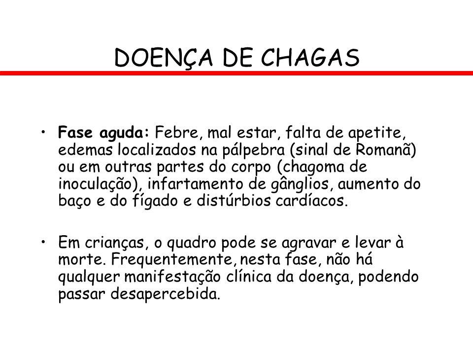 DOENÇA DE CHAGAS Fase aguda: Febre, mal estar, falta de apetite, edemas localizados na pálpebra (sinal de Romanã) ou em outras partes do corpo (chagom