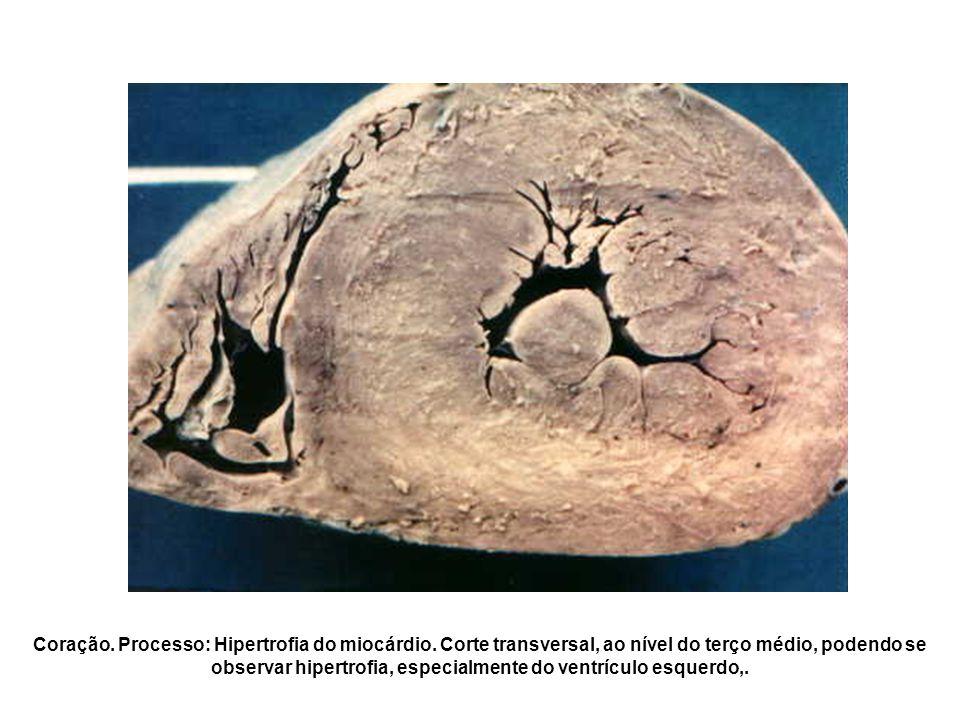 Coração. Processo: Hipertrofia do miocárdio. Corte transversal, ao nível do terço médio, podendo se observar hipertrofia, especialmente do ventrículo