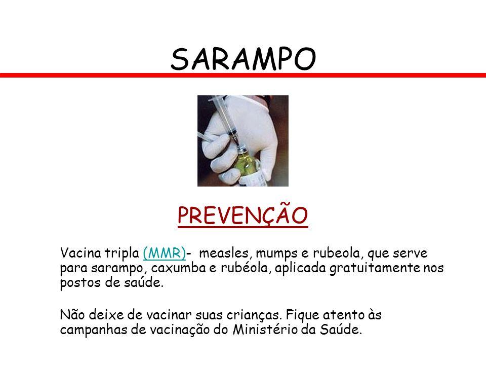 PREVENÇÃO Vacina tripla (MMR)- measles, mumps e rubeola, que serve para sarampo, caxumba e rubéola, aplicada gratuitamente nos postos de saúde.(MMR) N