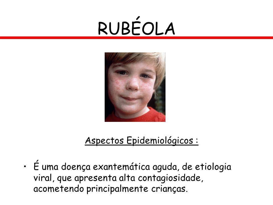 RUBÉOLA Aspectos Epidemiológicos : É uma doença exantemática aguda, de etiologia viral, que apresenta alta contagiosidade, acometendo principalmente c
