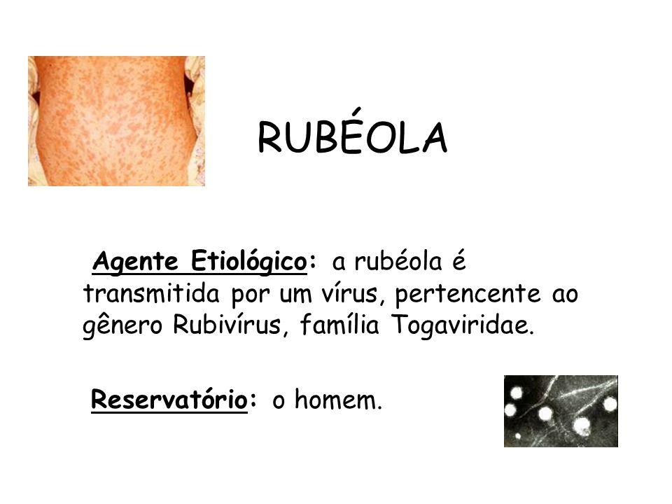 RUBÉOLA Agente Etiológico: a rubéola é transmitida por um vírus, pertencente ao gênero Rubivírus, família Togaviridae. Reservatório: o homem.