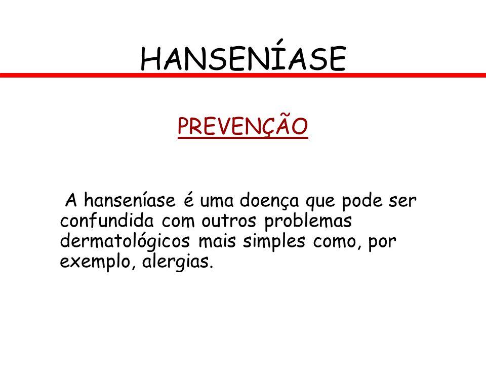 PREVENÇÃO A hanseníase é uma doença que pode ser confundida com outros problemas dermatológicos mais simples como, por exemplo, alergias. HANSENÍASE
