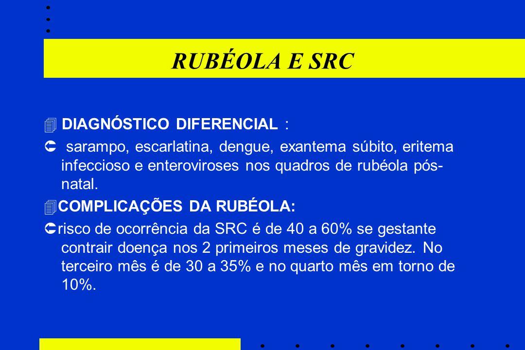 RUBÉOLA E SRC  DIAGNÓSTICO DIFERENCIAL :  sarampo, escarlatina, dengue, exantema súbito, eritema infeccioso e enteroviroses nos quadros de rubéola p