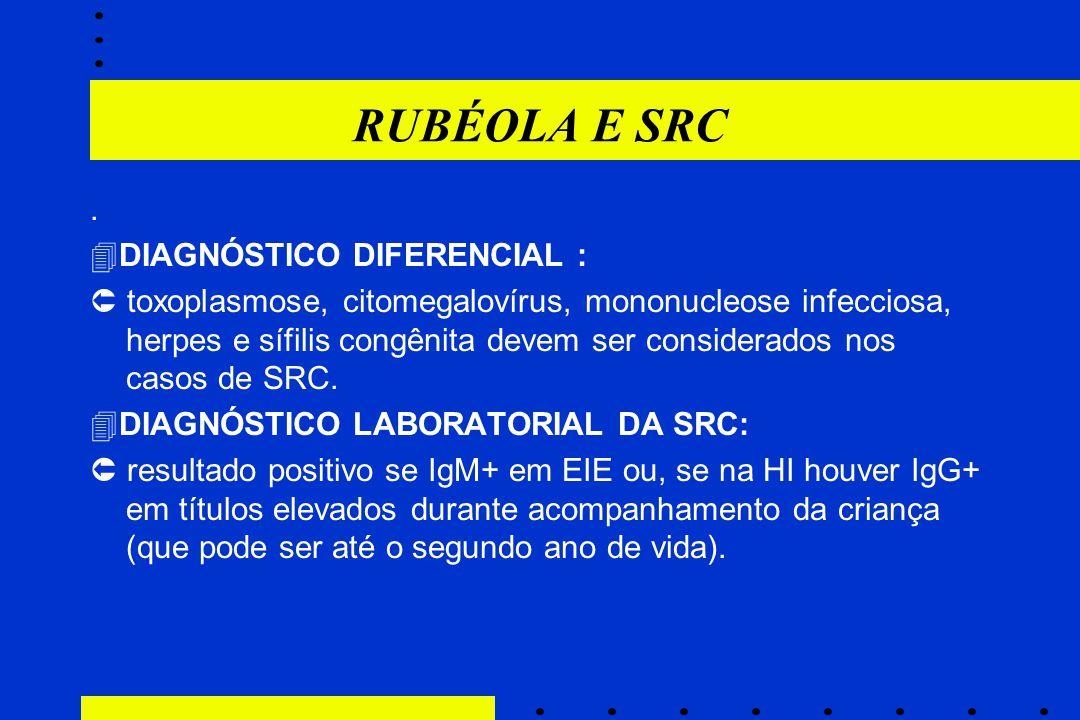RUBÉOLA E SRC.  DIAGNÓSTICO DIFERENCIAL :  toxoplasmose, citomegalovírus, mononucleose infecciosa, herpes e sífilis congênita devem ser considerados
