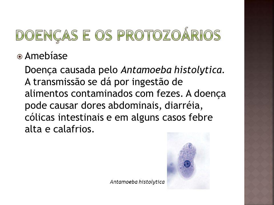  Amebíase Doença causada pelo Antamoeba histolytica. A transmissão se dá por ingestão de alimentos contaminados com fezes. A doença pode causar dores