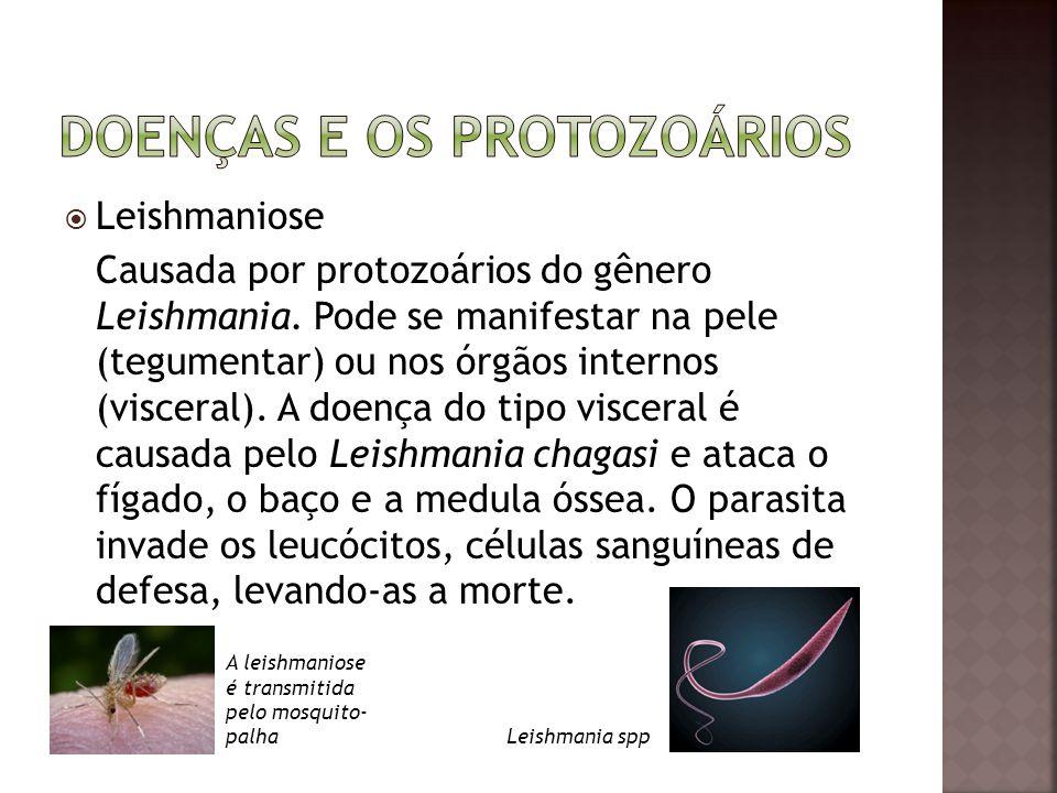  Leishmaniose Causada por protozoários do gênero Leishmania. Pode se manifestar na pele (tegumentar) ou nos órgãos internos (visceral). A doença do t