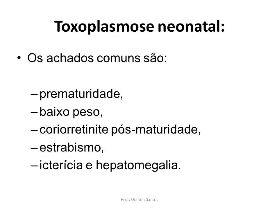 Toxoplasmose neonatal: Os achados comuns são: –prematuridade, –baixo peso, –coriorretinite pós-maturidade, –estrabismo, –icterícia e hepatomegalia. Pr
