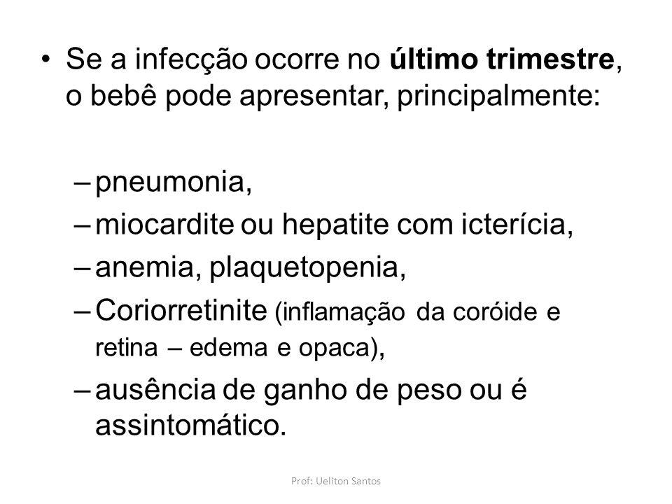 Se a infecção ocorre no último trimestre, o bebê pode apresentar, principalmente: –pneumonia, –miocardite ou hepatite com icterícia, –anemia, plaqueto