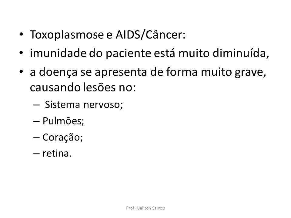Toxoplasmose e AIDS/Câncer: imunidade do paciente está muito diminuída, a doença se apresenta de forma muito grave, causando lesões no: – Sistema nerv