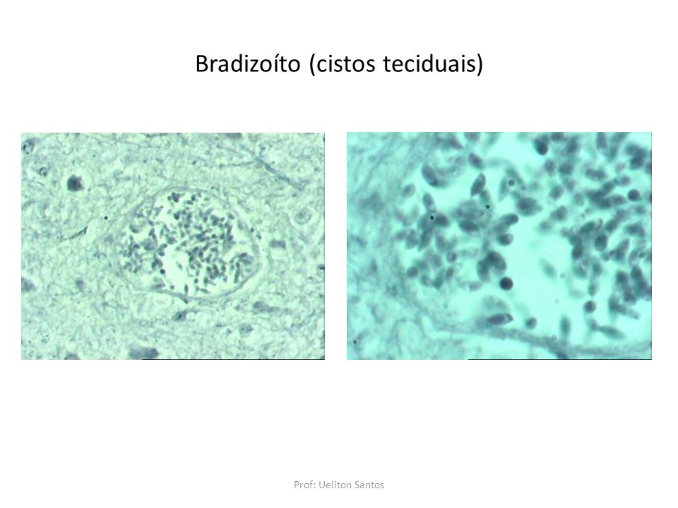 Bradizoíto (cistos teciduais) Prof: Ueliton Santos