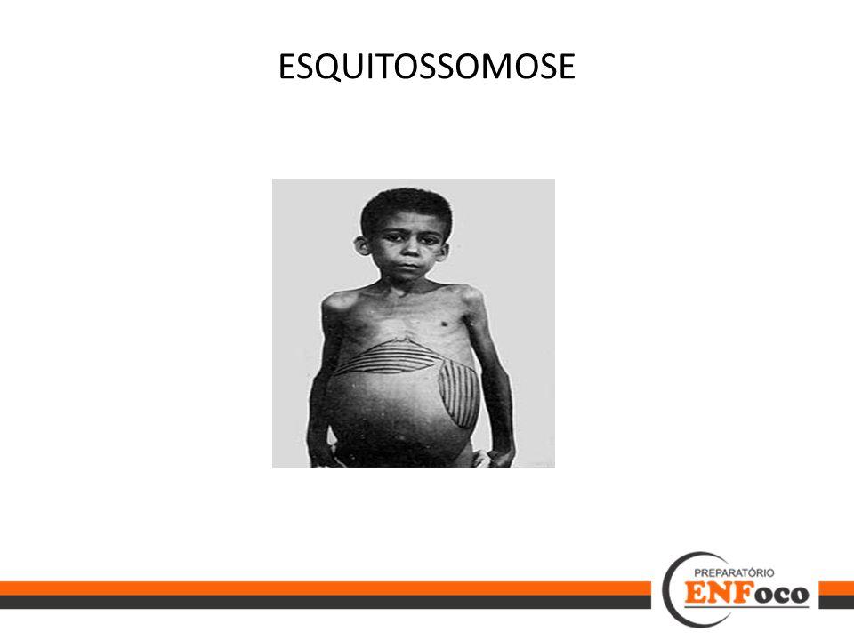 ESQUITOSSOMOSE