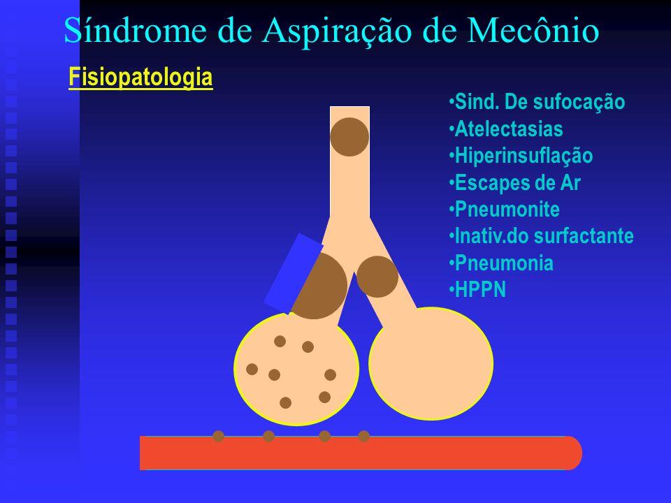 Síndrome de Aspiração de Mecônio Fisiopatologia Sind. De sufocação Atelectasias Hiperinsuflação Escapes de Ar Pneumonite Inativ.do surfactante Pneumon