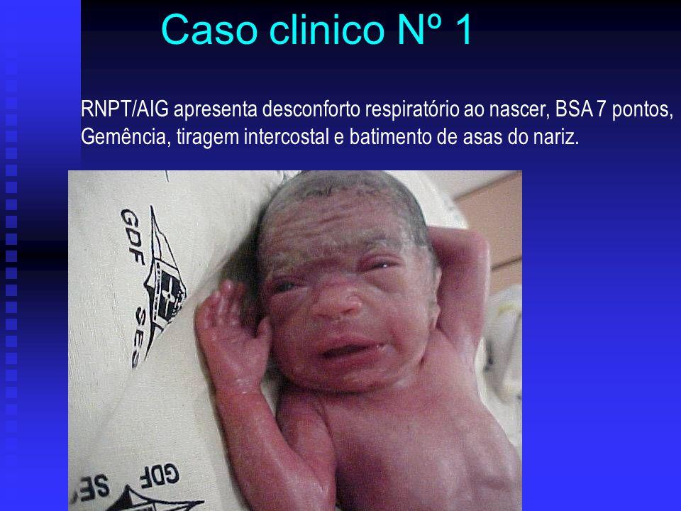 RNPT/AIG apresenta desconforto respiratório ao nascer, BSA 7 pontos, Gemência, tiragem intercostal e batimento de asas do nariz. Caso clinico Nº 1