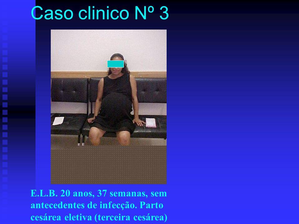E.L.B. 20 anos, 37 semanas, sem antecedentes de infecção. Parto cesárea eletiva (terceira cesárea) Caso clinico Nº 3