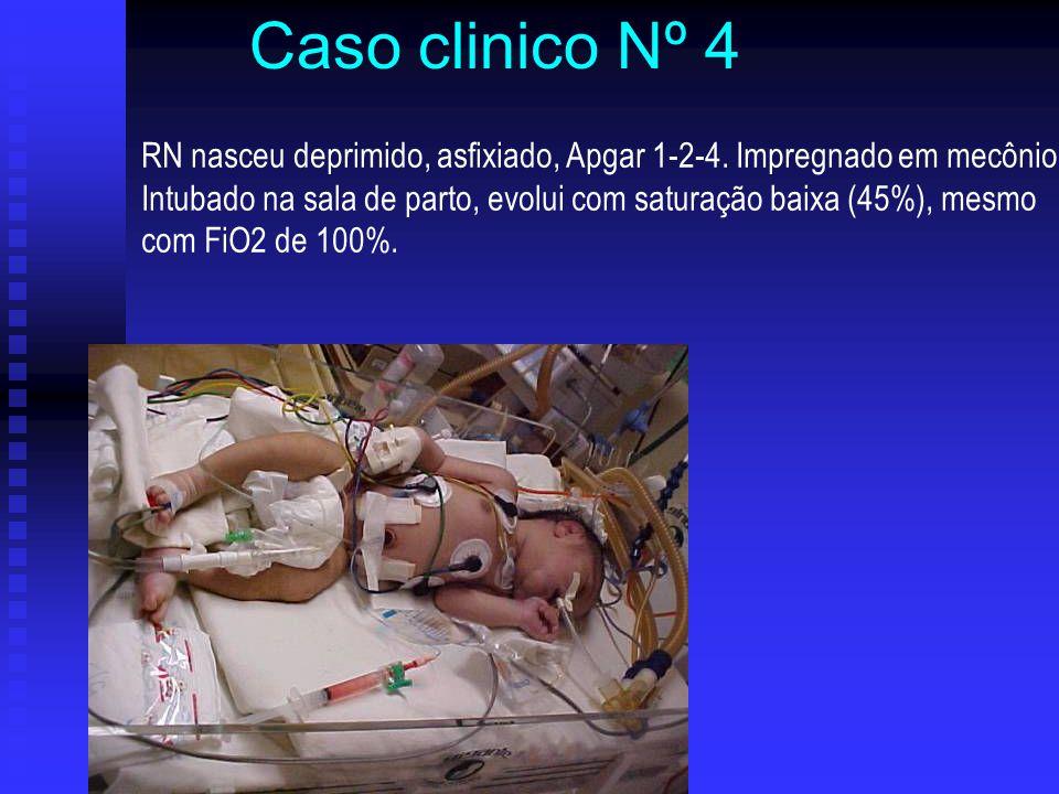 RN nasceu deprimido, asfixiado, Apgar 1-2-4. Impregnado em mecônio Intubado na sala de parto, evolui com saturação baixa (45%), mesmo com FiO2 de 100%
