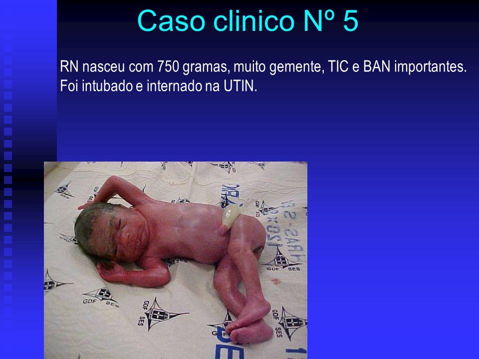 Caso clinico Nº 5 RN nasceu com 750 gramas, muito gemente, TIC e BAN importantes. Foi intubado e internado na UTIN.