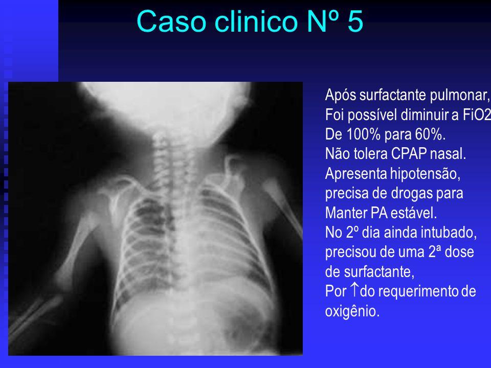 Após surfactante pulmonar, Foi possível diminuir a FiO2 De 100% para 60%. Não tolera CPAP nasal. Apresenta hipotensão, precisa de drogas para Manter P