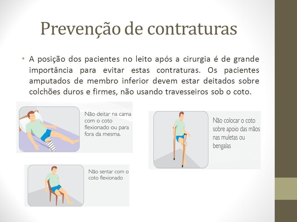 Prevenção de contraturas A posição dos pacientes no leito após a cirurgia é de grande importância para evitar estas contraturas. Os pacientes amputado