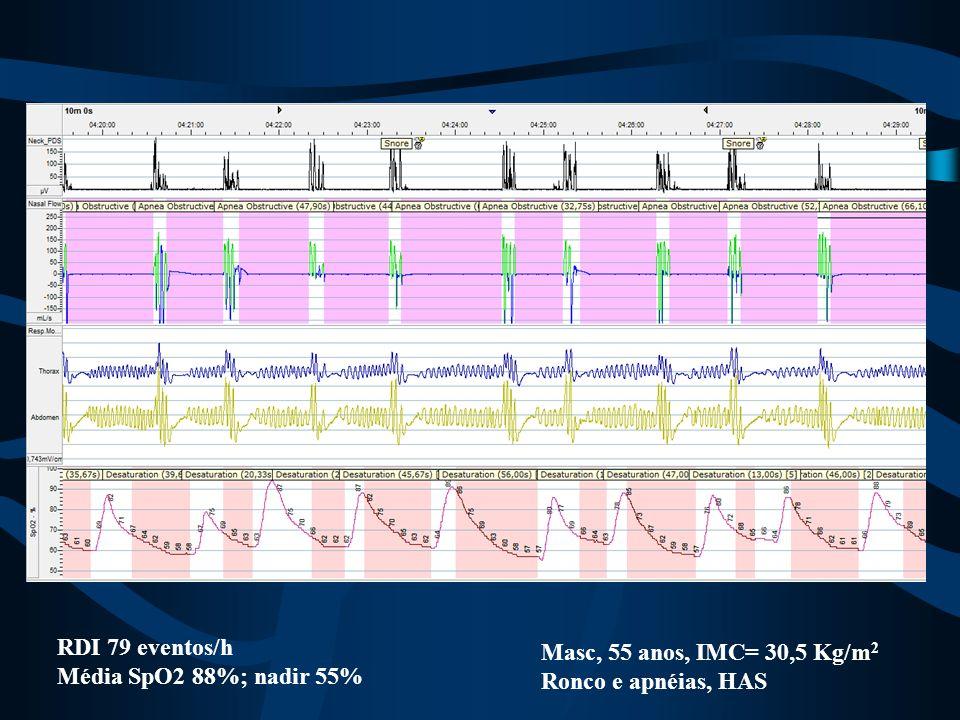 RDI 79 eventos/h Média SpO2 88%; nadir 55% Masc, 55 anos, IMC= 30,5 Kg/m 2 Ronco e apnéias, HAS