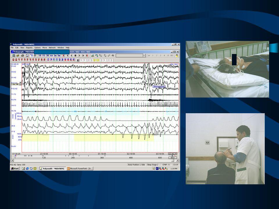Polissonografia portátil considerações Adaptado de Collop N. Curr Opin Pulm Med. 2008