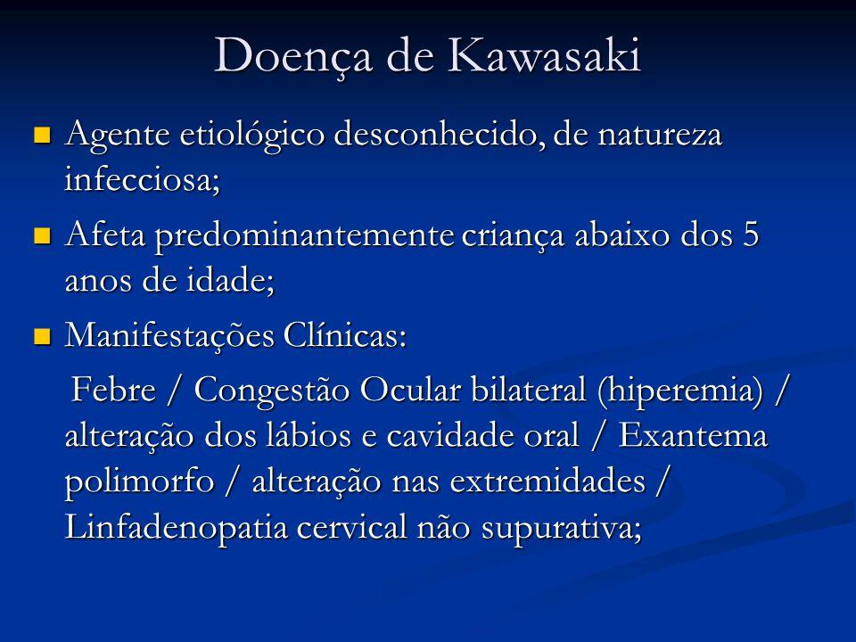 Doença de Kawasaki Agente etiológico desconhecido, de natureza infecciosa; Agente etiológico desconhecido, de natureza infecciosa; Afeta predominantemente criança abaixo dos 5 anos de idade; Afeta predominantemente criança abaixo dos 5 anos de idade; Manifestações Clínicas: Manifestações Clínicas: Febre / Congestão Ocular bilateral (hiperemia) / alteração dos lábios e cavidade oral / Exantema polimorfo / alteração nas extremidades / Linfadenopatia cervical não supurativa; Febre / Congestão Ocular bilateral (hiperemia) / alteração dos lábios e cavidade oral / Exantema polimorfo / alteração nas extremidades / Linfadenopatia cervical não supurativa;