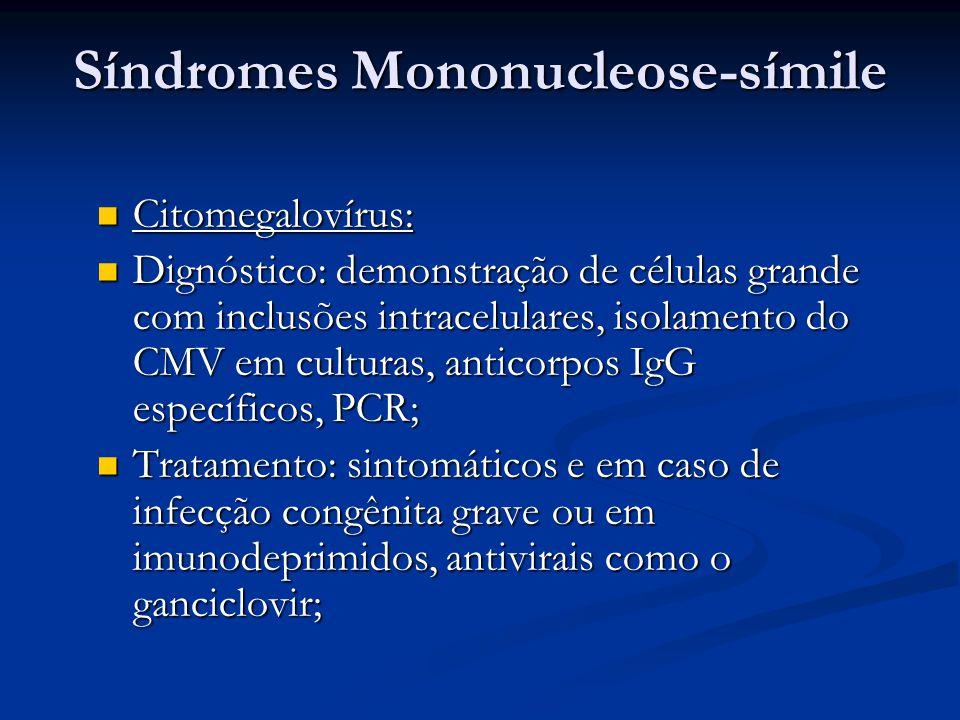 Síndromes Mononucleose-símile Citomegalovírus: Citomegalovírus: Dignóstico: demonstração de células grande com inclusões intracelulares, isolamento do CMV em culturas, anticorpos IgG específicos, PCR; Dignóstico: demonstração de células grande com inclusões intracelulares, isolamento do CMV em culturas, anticorpos IgG específicos, PCR; Tratamento: sintomáticos e em caso de infecção congênita grave ou em imunodeprimidos, antivirais como o ganciclovir; Tratamento: sintomáticos e em caso de infecção congênita grave ou em imunodeprimidos, antivirais como o ganciclovir;