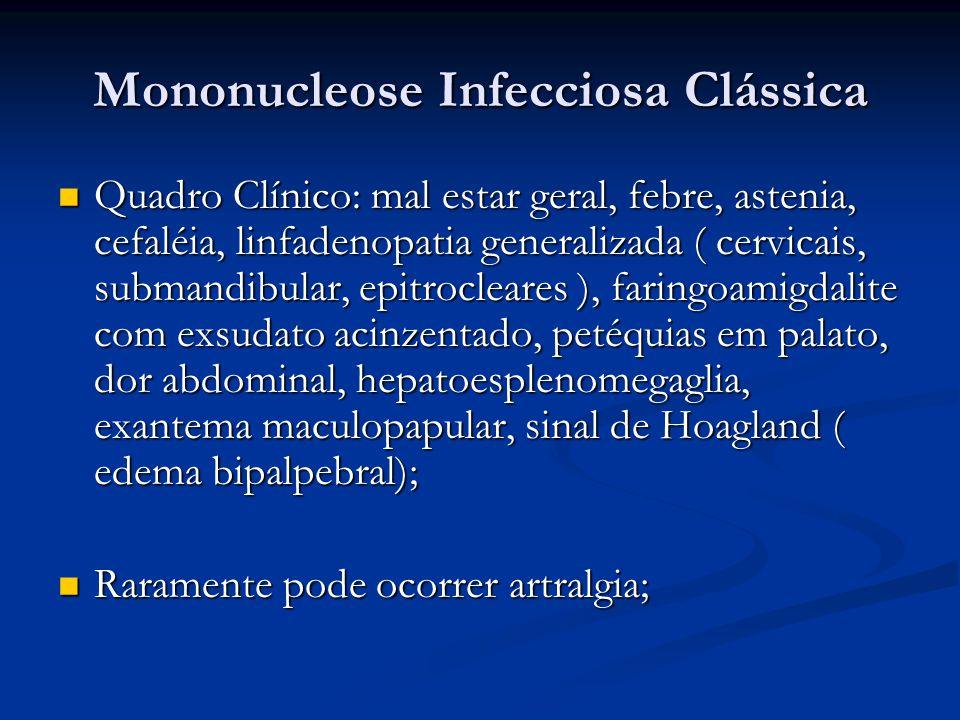 Mononucleose Infecciosa Clássica Quadro Clínico: mal estar geral, febre, astenia, cefaléia, linfadenopatia generalizada ( cervicais, submandibular, epitrocleares ), faringoamigdalite com exsudato acinzentado, petéquias em palato, dor abdominal, hepatoesplenomegaglia, exantema maculopapular, sinal de Hoagland ( edema bipalpebral); Quadro Clínico: mal estar geral, febre, astenia, cefaléia, linfadenopatia generalizada ( cervicais, submandibular, epitrocleares ), faringoamigdalite com exsudato acinzentado, petéquias em palato, dor abdominal, hepatoesplenomegaglia, exantema maculopapular, sinal de Hoagland ( edema bipalpebral); Raramente pode ocorrer artralgia; Raramente pode ocorrer artralgia;