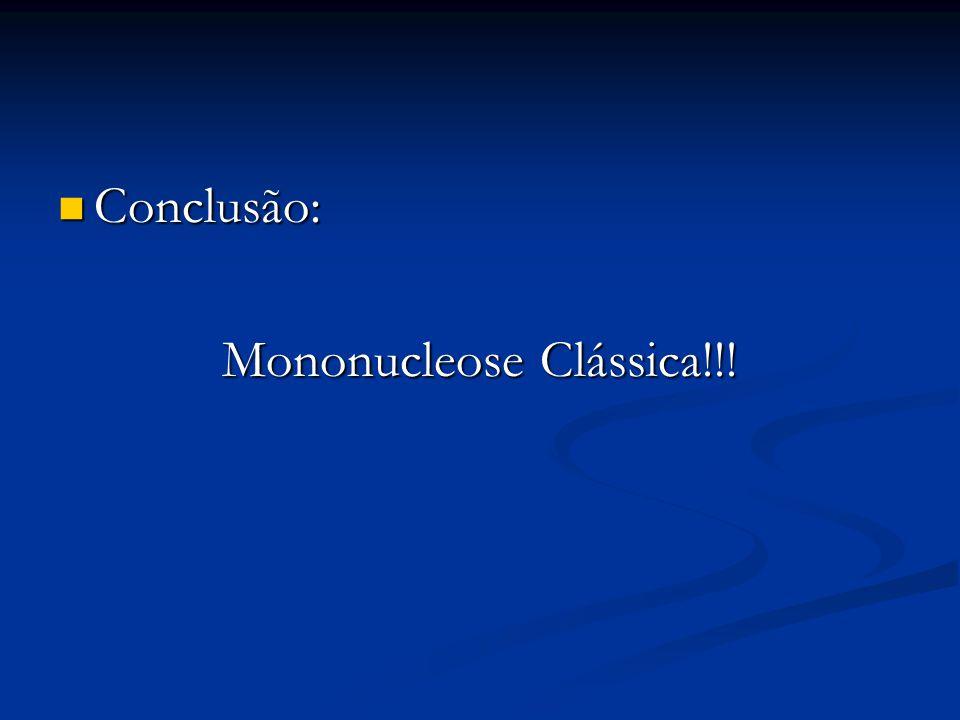Conclusão: Conclusão: Mononucleose Clássica!!!