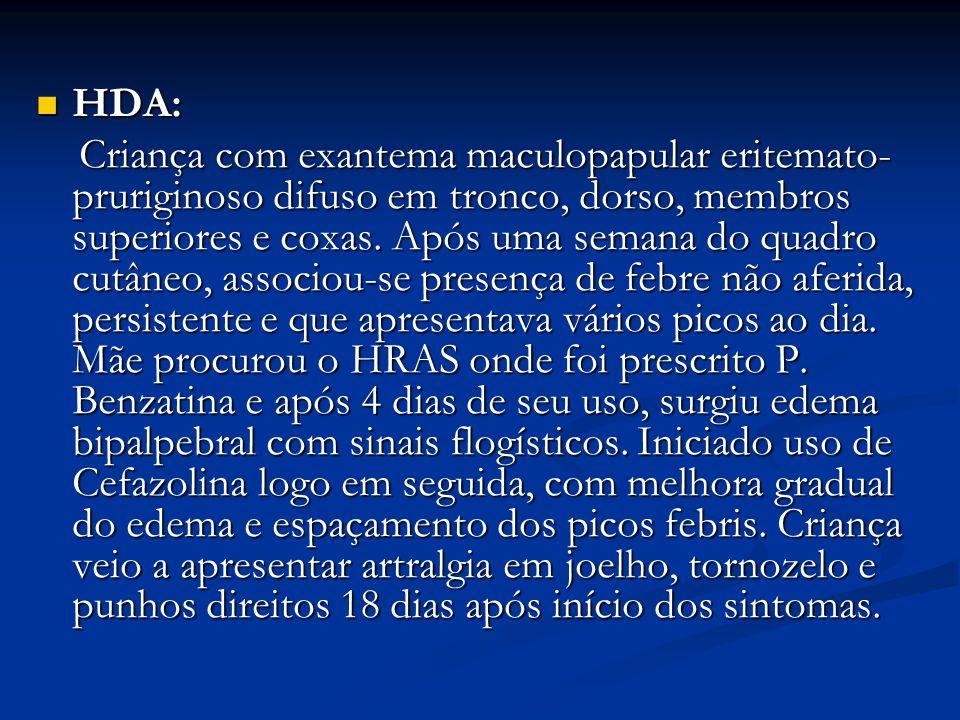 HDA: HDA: Criança com exantema maculopapular eritemato- pruriginoso difuso em tronco, dorso, membros superiores e coxas.