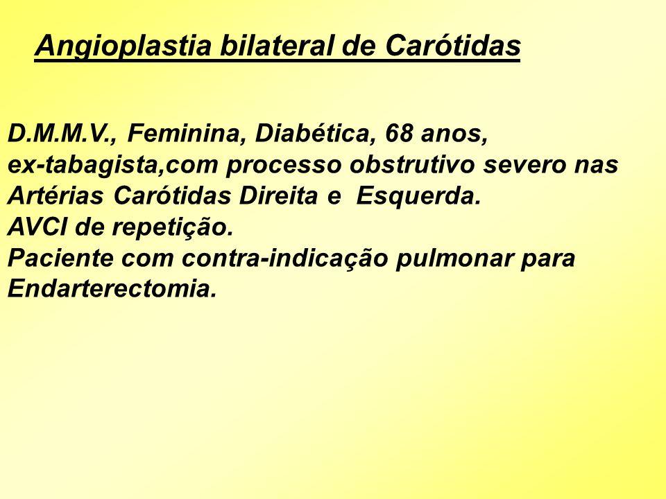 D.M.M.V., Feminina, Diabética, 68 anos, ex-tabagista,com processo obstrutivo severo nas Artérias Carótidas Direita e Esquerda. AVCI de repetição. Paci