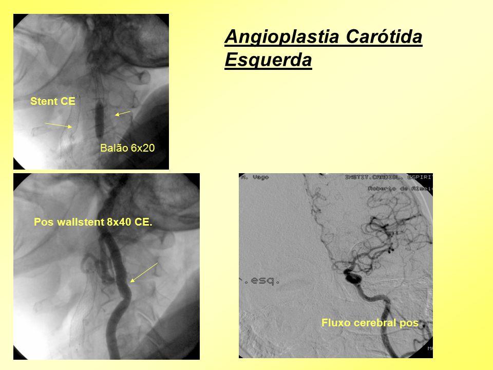 Pos wallstent 8x40 CE. Balão 6x20 Stent CE Fluxo cerebral pos Angioplastia Carótida Esquerda