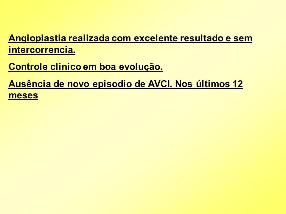 Angioplastia realizada com excelente resultado e sem intercorrencia.