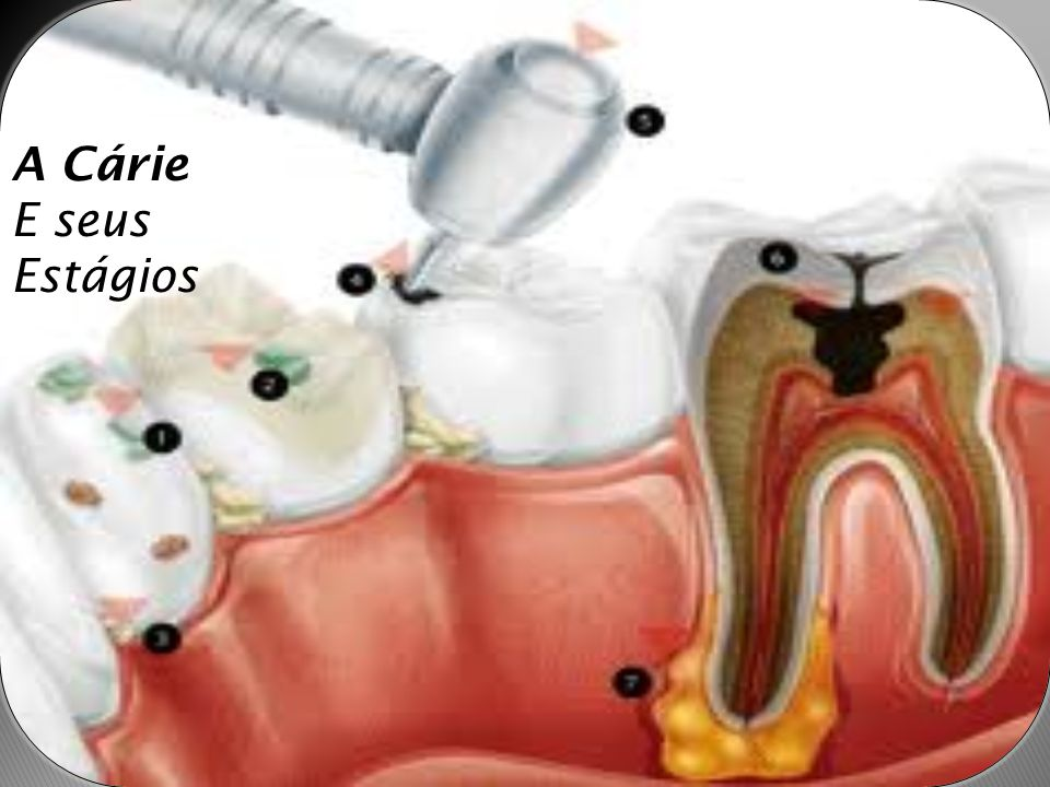  A cárie dentária é uma doença dos tecidos calcificados dos dentes, que se caracteriza pela desmineralização da porção inorgânica e pela destruição da substância orgânica do dente