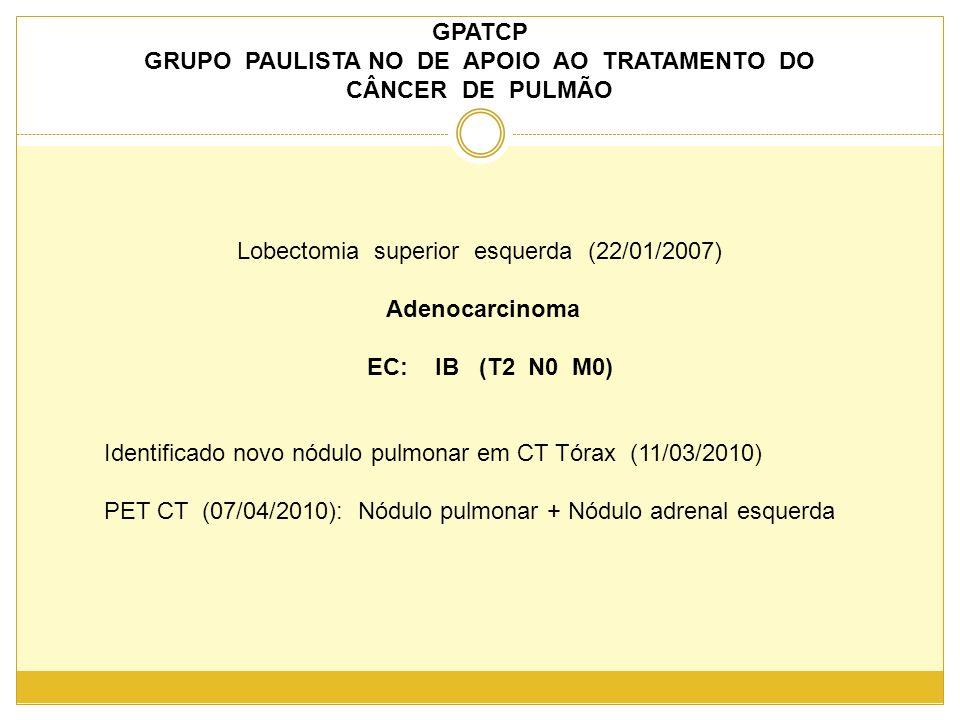 GPATCP GRUPO PAULISTA NO DE APOIO AO TRATAMENTO DO CÂNCER DE PULMÃO Lobectomia superior esquerda (22/01/2007) Adenocarcinoma EC: IB (T2 N0 M0) Identificado novo nódulo pulmonar em CT Tórax (11/03/2010) PET CT (07/04/2010): Nódulo pulmonar + Nódulo adrenal esquerda