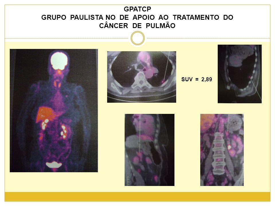 GPATCP GRUPO PAULISTA NO DE APOIO AO TRATAMENTO DO CÂNCER DE PULMÃO SUV = 2,89