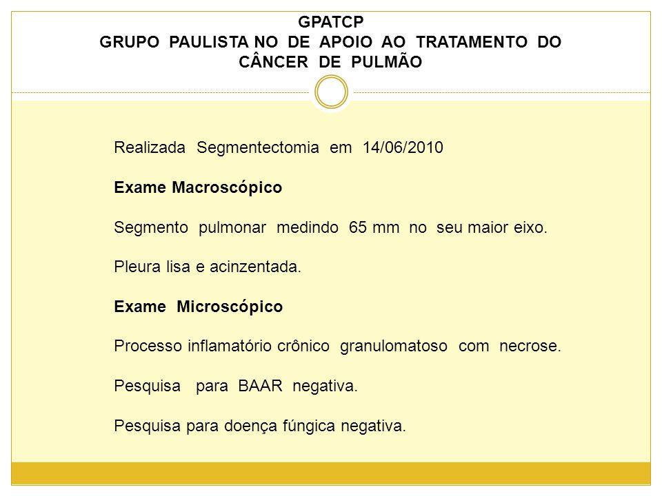 GPATCP GRUPO PAULISTA NO DE APOIO AO TRATAMENTO DO CÂNCER DE PULMÃO Realizada Segmentectomia em 14/06/2010 Exame Macroscópico Segmento pulmonar medindo 65 mm no seu maior eixo.